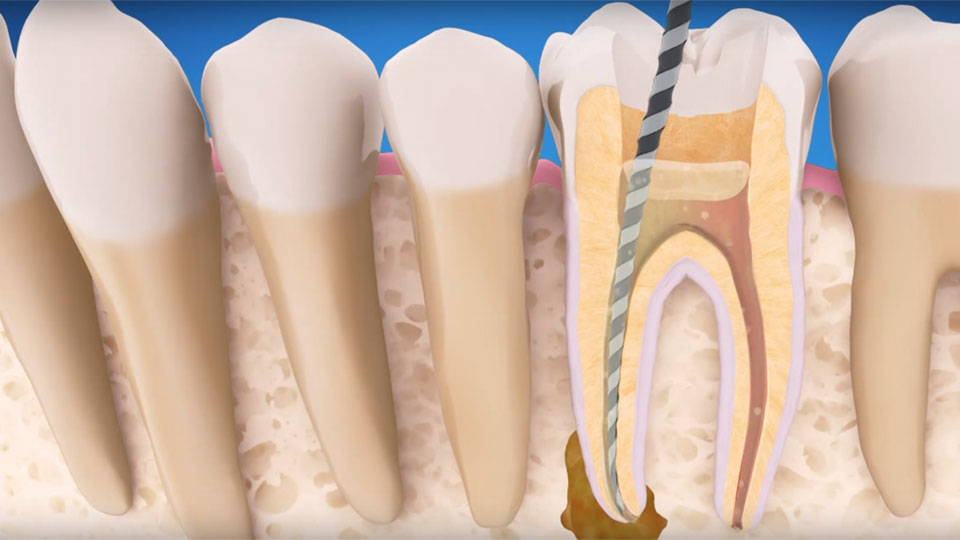 Endodontists in Houston